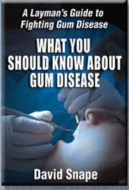 Gingivitis / Gum Disease